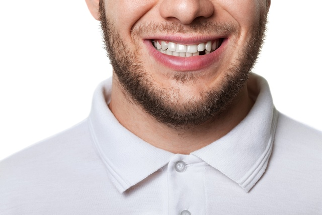 Close up of a man with a missing tooth
