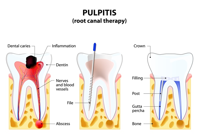 Diagram explaining root canal therapy