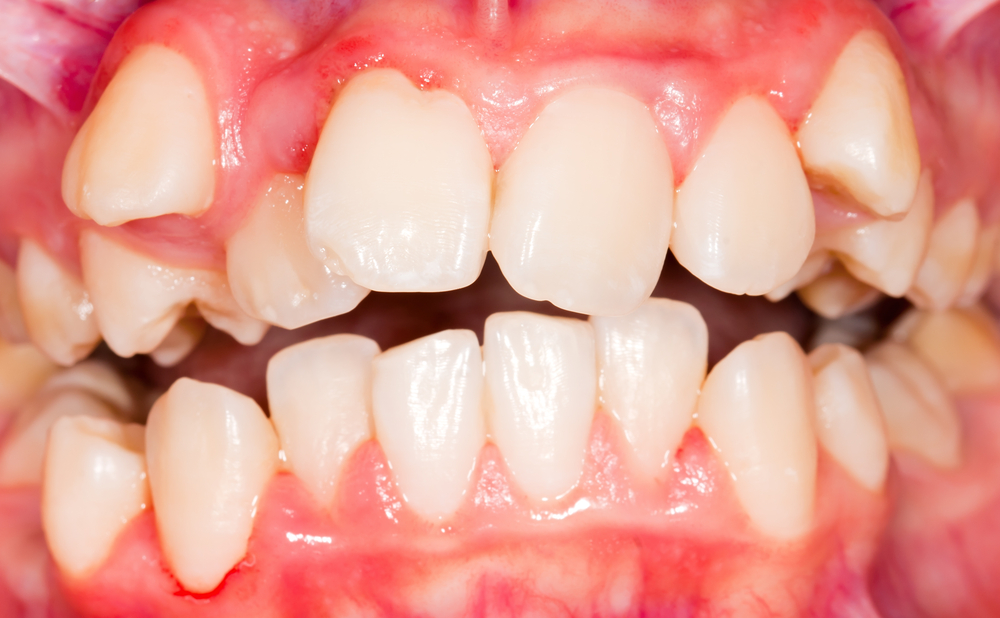 Close up of mouth with malocclusion
