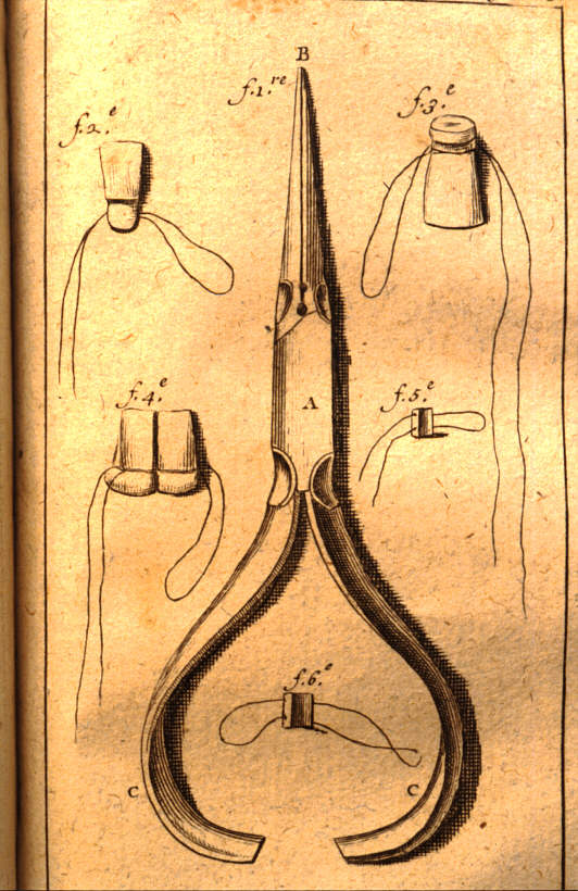 Drawing of dental needle-nose pliers designed by Fauchard in the late 17th century to use in prosthodontics. History of Dentistry.