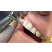Teeth Cleaning Essendon